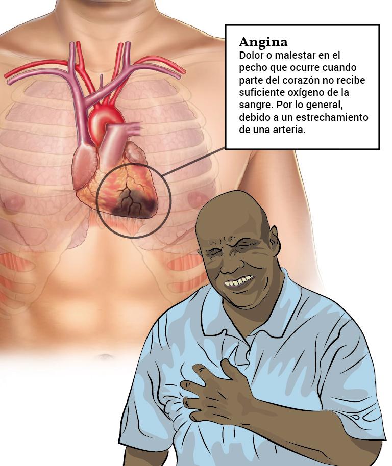 Angina_spansk