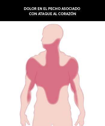 Brystsmerter_ved_hjertesykdom_spansk