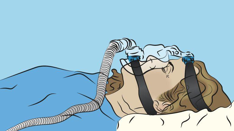 CPAP_ventile